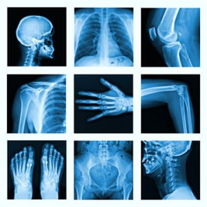 Personal Injury X Ray