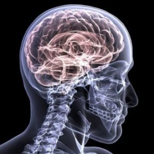 Traumatic Brain Injury Disability